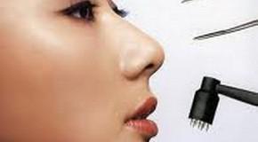 Câu chuyện chiếc mũi