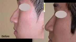Phẫu thuật sống mũi gồ ở đâu?