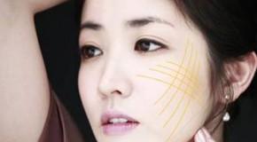 Căng da mặt bằng chỉ vàng đem lại tuổi xuân cho phụ nữ