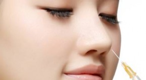 Nâng mũi bằng chất làm đầy như thế nào?